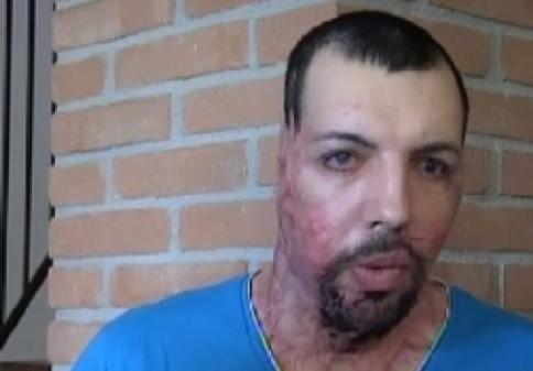 """La madre dello sfregiato con l'acido dalla ex: """"Ci ha chiamato la Annibali"""""""