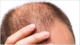 Alopecia il trapianto di capelli non basta: le novità dalla Medicina Rigenerativa