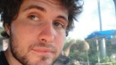 Milano, operato il 22enne aggredito con l'acido: ustione profonda a occhio