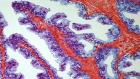 tumore prostata ed infezione pene